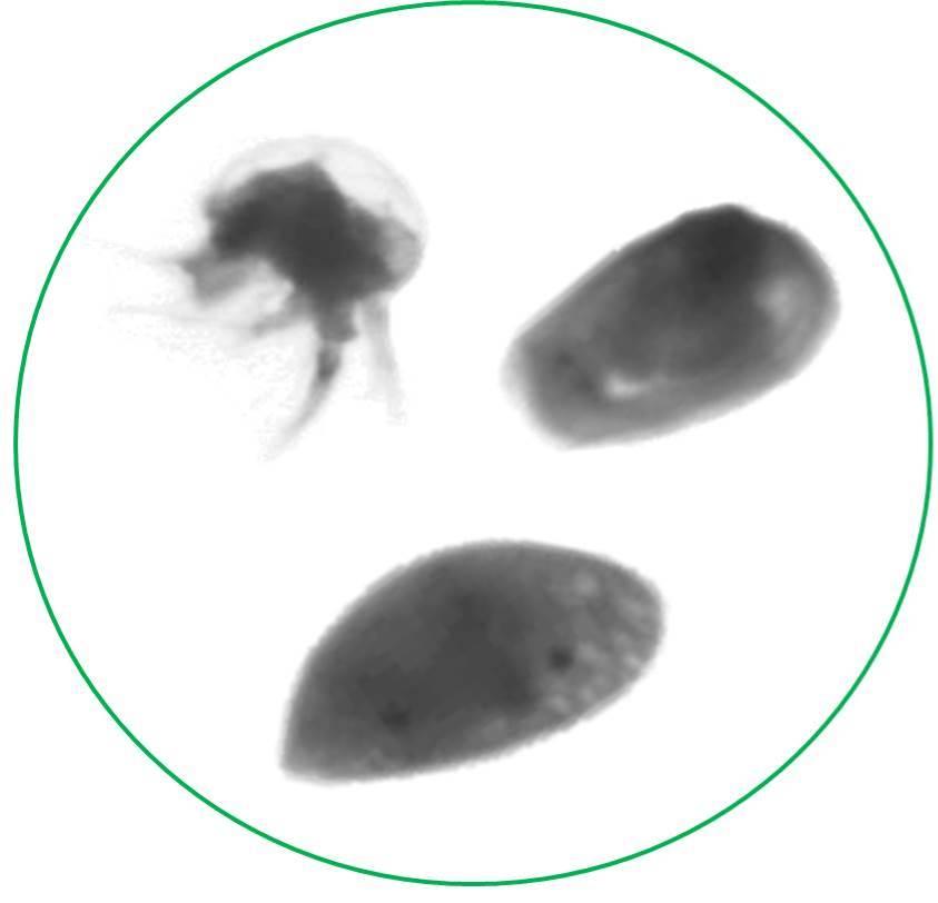 Clam-like zooplankton under microscope